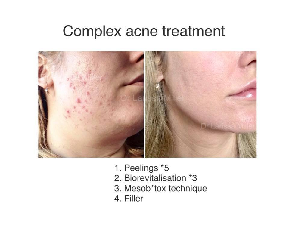 Acne management
