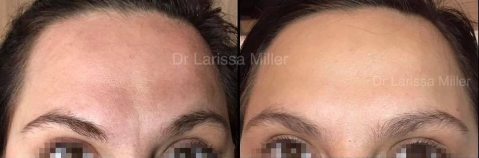 Botox Melbourne Dysport before and after anti wrinkle injections melbourne cosmetic clinic