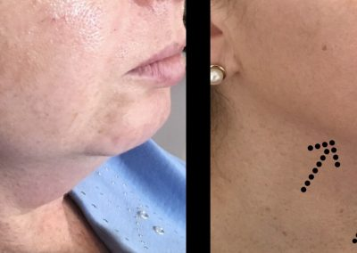 fat dissolving injections melbourne cosmetic clinic dr miller cosmetic doctor melbourne double chin fat removal