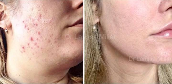 acne treatment melbourne dr larissa miller