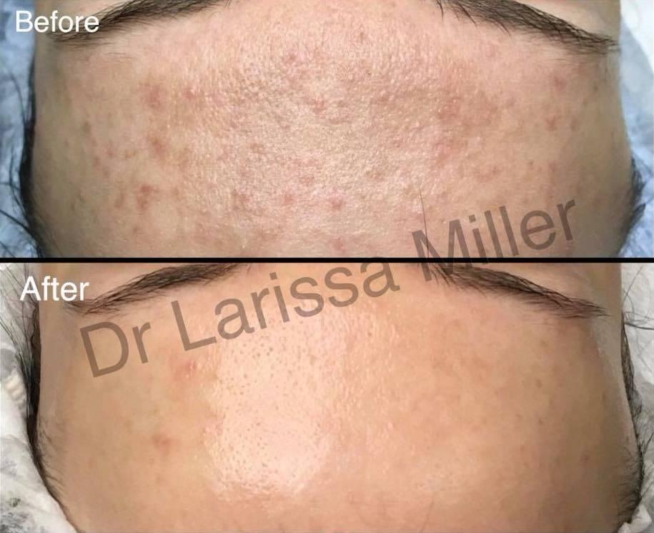 acne forehead melbourne dr larissa miller