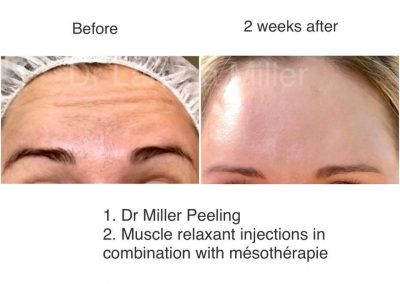 VISTA clinic anti wrinkle injections advanced
