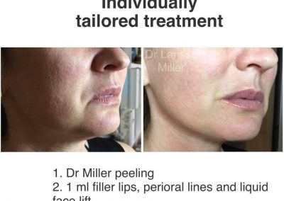 skin peel treatment botox juvederm dysport melbourne