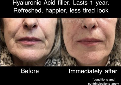 before and after cosmetic treatment dermal filler Melbourne