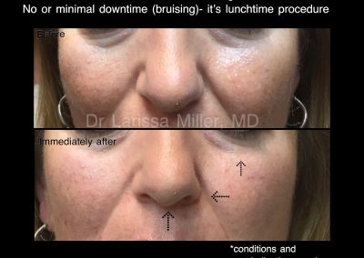 BEFORE AND AFTER LUNCHTIME FACE REJUVENATION BEST COSMETIC RESULTS MELBOURNE DR LARISSA MILLER MELBOURNE VISTA CLINIC