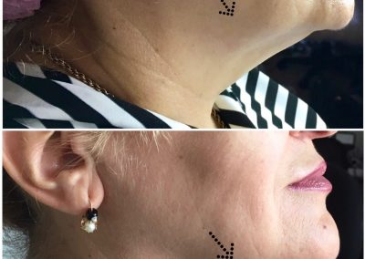 non-surgical facelift melbourne non surgical facelift treatment melbourne non-surgical facelift cosmetic clinic dr miller vista clinic