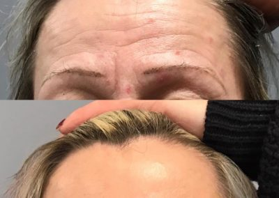 FOREHEAD WRINKLES TREATMENT BEST COSMETIC RESULTS MELBOURNE BEST COSMETIC DOCTOR LARISSA MILLER