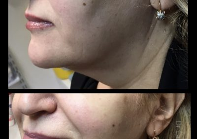 THREADS COSMETIC DOCTOR DR MILLER VISTA CLINIC NON SURGICAL FACELIFT