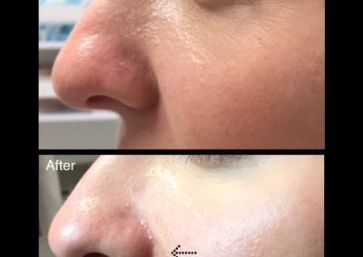 nose job Melbourne