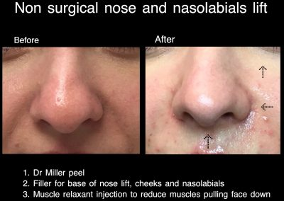 elevation nose dr larissa miller melbourne