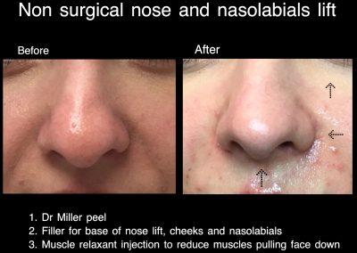 elevation nose dr larissa miller melbourne