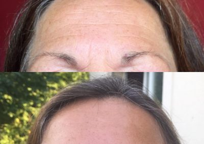 FOREHEAD ANTI WRINKLE TREATMENT MELBOURNE BEST COSMETIC RESULTS MELBOURNE VISTA CLINIC MELBOURNE DR LARISSA MILLER