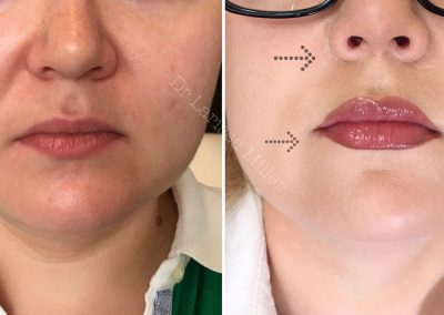 cosmetic injecitons Melbourne