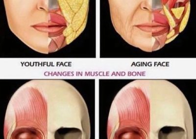 Aging face management