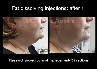 Melbourne fat dissolving chin injections