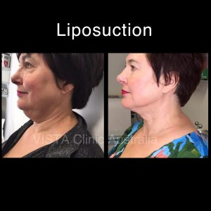 non surgical liposuction melbourne cosmetic doctor bentleigh east real results real people before and after dr larissa miller cosmetic clinic melbourne