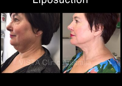 neck liposuciton Melbourne