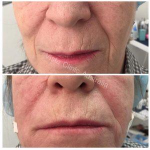 wrinkle subcision dr Larissa Miller
