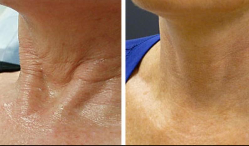 Best melbourne neck treatment