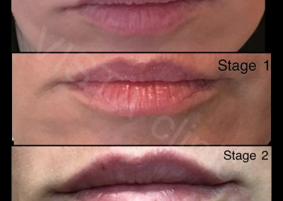 discount lip filler melbourne