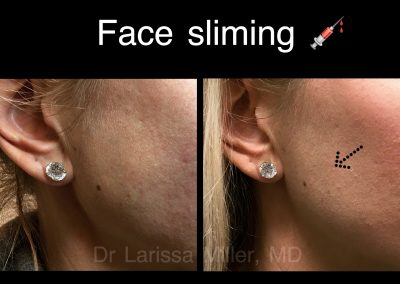 FACE SLIMMING TREATMENT MELBOURNE BEST COSMETIC DOCTOR LARISSA MILLER MELBOURNE