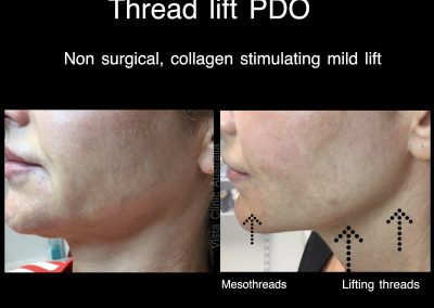 PDO threadlift jaw line Melbourne