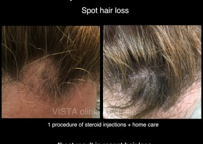 ALOPECIA HAIR LOSS BEST RESULTS CLINIC VISTA CLINIC MELBOURNE DR LARISSA MILLER