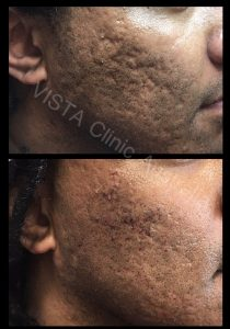 french subcision with filler acne and scars cosmetic treatment best cosmetic results melbourne cosmetic doctor dr larissa miller