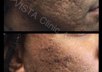 subcision with filler acne and scars cosmetic treatment best cosmetic results melbourne cosmetic doctor dr larissa miller