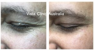 DARK CIRCLES UNDER EYES BEST COSMETIC TREATMENT MELBOURNE DR MILLER COSMETIC DOCTOR MELBOURNE
