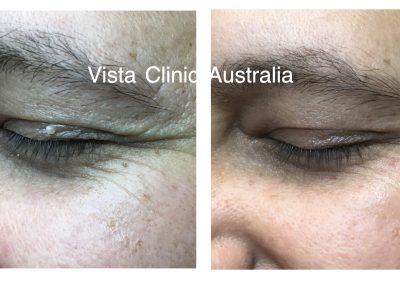 eyelid lumps Melbourne