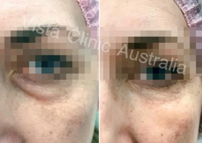 DARK CIRCLES UNDER EYES BEST COSMETIC TREATMENT MELBOURNE DR MILLER COSMETIC DOCTOR MELBOURNE bag under eyes treatment melbourne