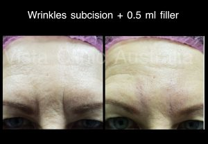 FOREHEAD ANTI WRINKLE TREATMENT BEST COSMETIC RESULTS MELBOURNE VISTA CLINIC DR LARISSA MILLER