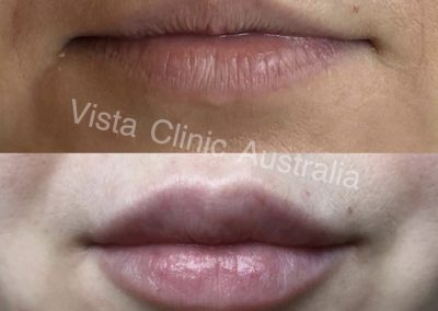 lips treatment melbourne cosmetic doctor bentleigh best cosmetic results melbourne dr larissa miller lip filler melbourne bentleigh east cosmetic doctor