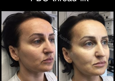 face lift without surgery Melbourne