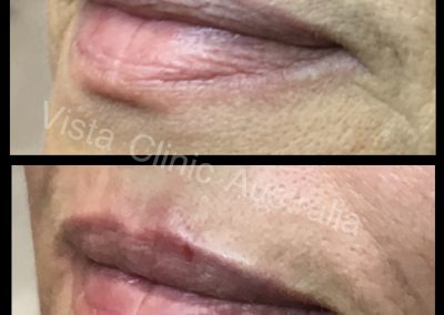 award winning lips Melbourne