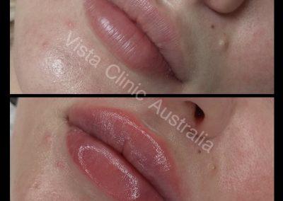 filler lips melbourne