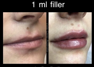 sexy lips filler melbourne