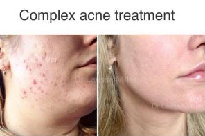 acne dermatologist melbourne