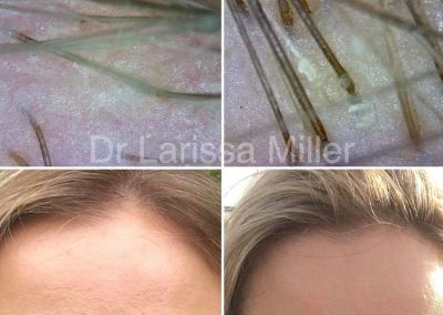 cosmetic hair loss treatment Melbourne