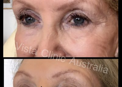 hyaluronic acid filler Melbourne