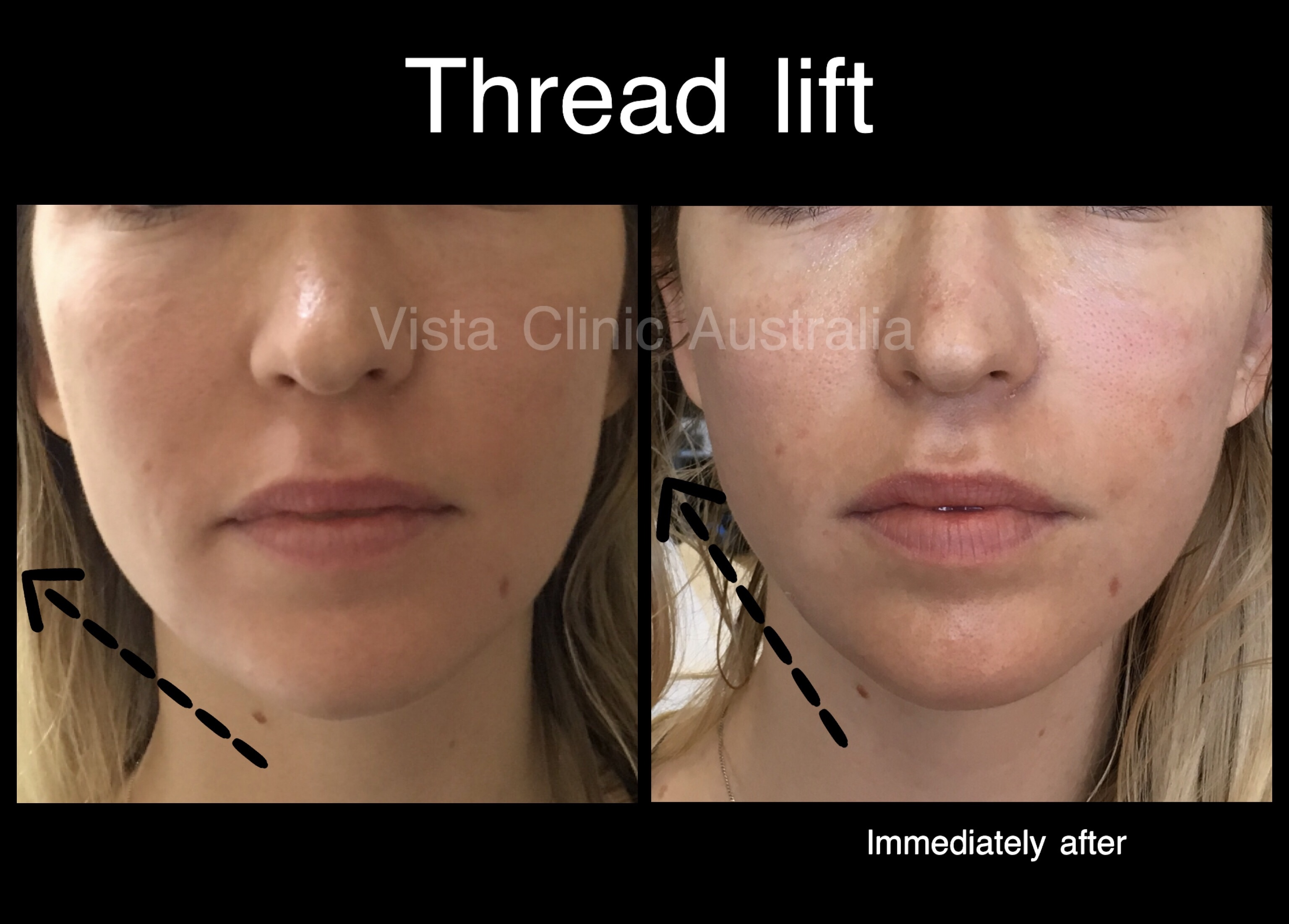 Threads PDO - Vista Clinic Melbourne Australia