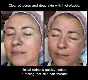 clean skin Melbourne