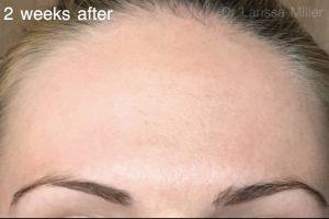 forehead wrinkles treatment melbourne vista clinic australia dr larissa miller melbourne anti-wrinkle injections melbourne