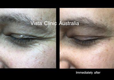 eye skin lesions removal Melbourne
