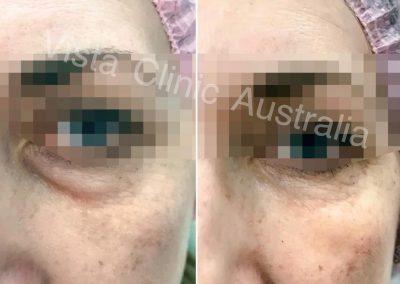 bags under eyes dark circles Melbourne