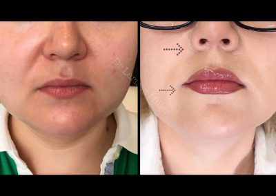 upper lip lift Melbourne