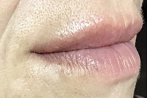 smoker lines concerns cosmetic treatment melbourne australia vista clinic dr larissa miller melbourne