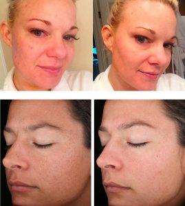 skin peel treatment best cosmetic clinic Melbourne