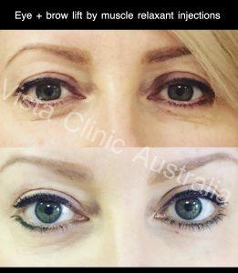 eyelift botox Melbourne